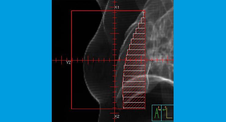 Beispiel für 3D-konformale Bestrahlung_Die Lamellen passen sich dem Tumor in der Brust an, so dass die Lunge geschont wird.