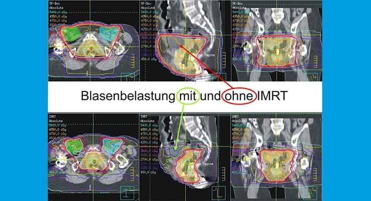 Durch Anwendung der IMRT kann die Blasenbelastung bei der gleichen Patientin immens reduziert werden.