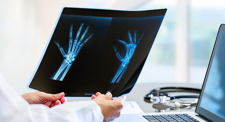 Röntgenbild Hand